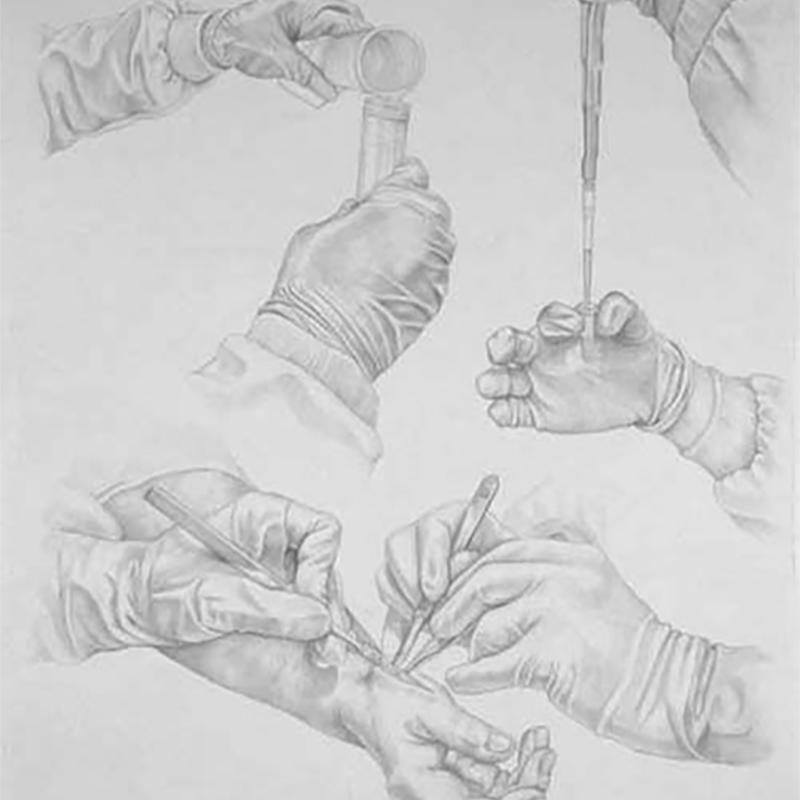 Francesca Corra Medical Artist osteoarthritis silverpoint drawing