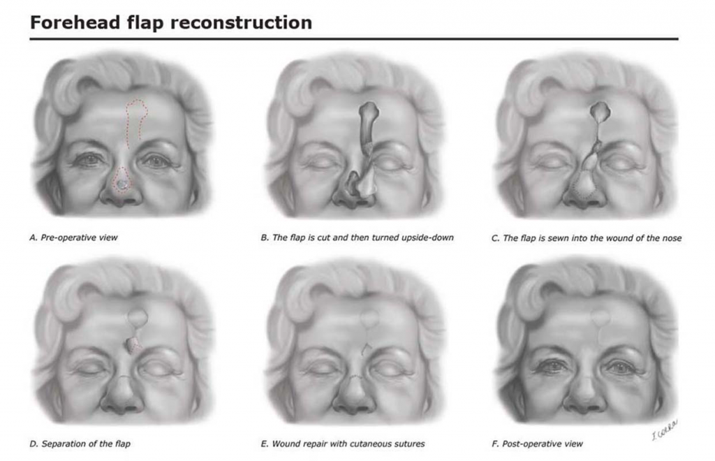 Francesca Corra Medical Illustration Forehead Flap Surgery