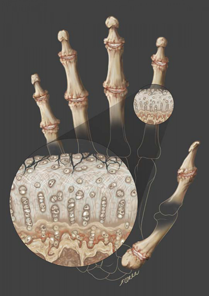 Francesca Corra Medical Illustration hand osteoarthritis
