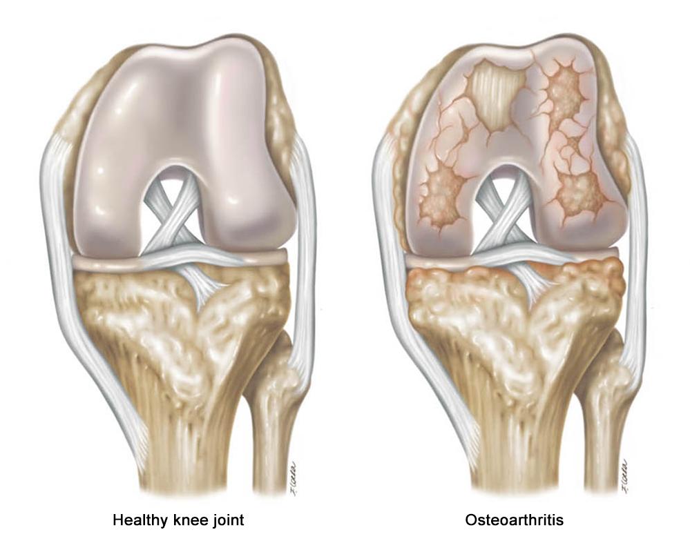 Francesca Corra Medical Illustration Knee Osteoarthritis