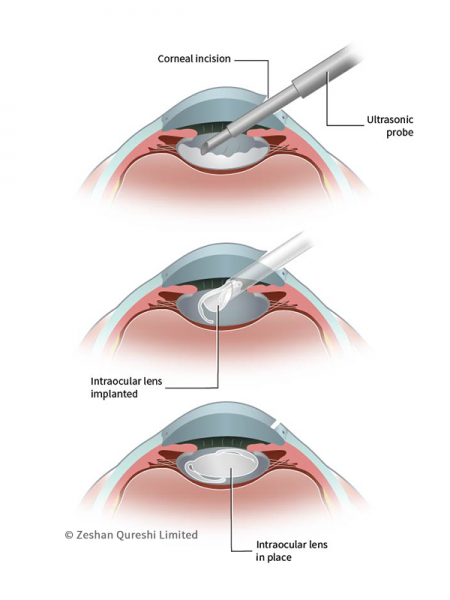 Francesca Corra Medical Illustration Ophthalmology Surgery