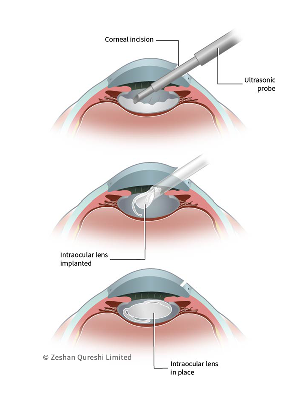 Francesca Corra Medical Illustration Ophthalmology Surgery