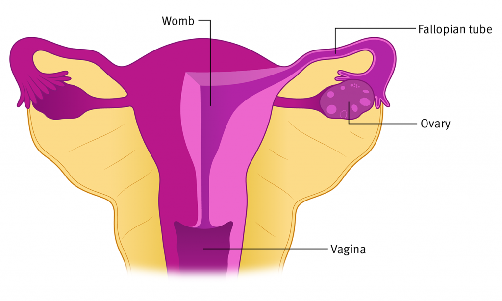 Francesca Corra Medical Illustration Ovarian Cancer