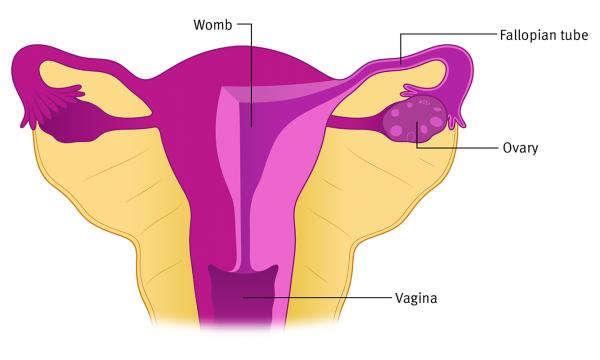 Francesca Corra Medical Illustration Ovarian Cancer