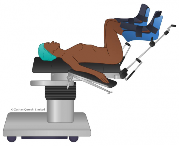 Francesca Corra Medical Illustration Patient Position Lithotomy
