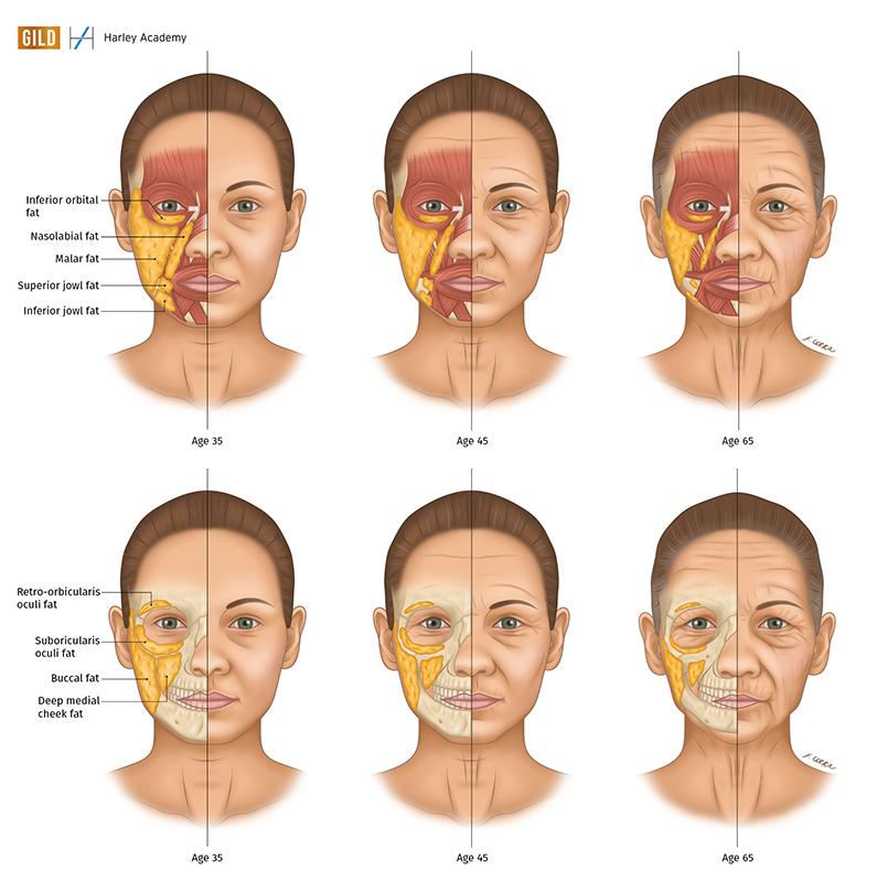 Francesca Corra Medical Illustration Aesthetic Medicine