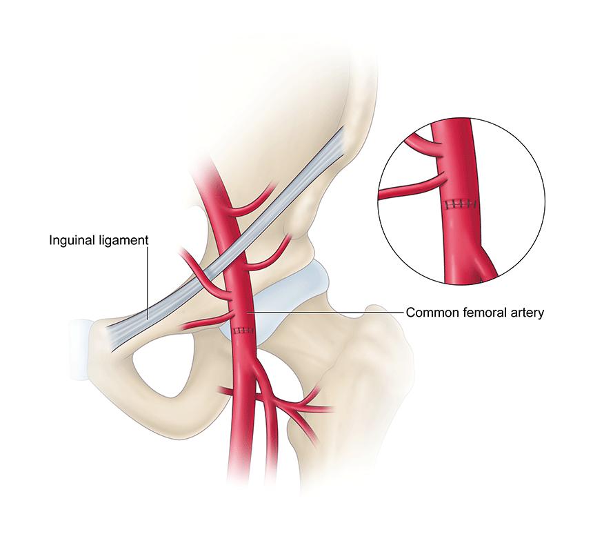 Francesca Corra Medical Illustration Vascular Surgery