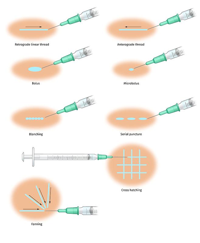 Francesca Corra Medical illustration injection techniques